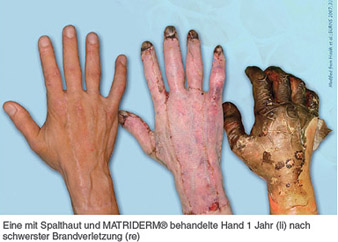 Read more about the article Faszination Hauttransplantation